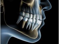 Implantate / künstliche Zahnwurzeln aus Titan oder Keramik. Knochenaufbauende Maßnahmen für das Implantatbett bei Bedarf!
