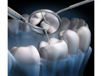 Prävention, Diagnose und Behandlung von Erkrankungen des Zahnfleisches. Schonende Behandlung beginnender oder fortgeschrittener Parodontitis.