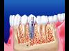 Thumbnail Implantate 3