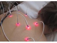 Laserakupunktur und Laser Needle Behandlung