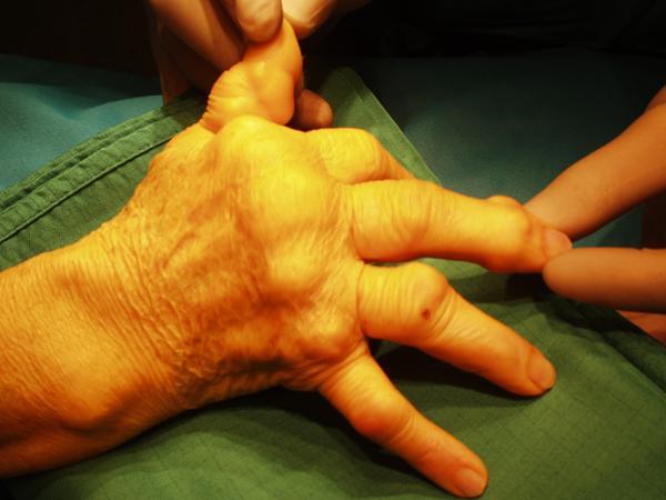 Vorschau - Rheumahand vor der Operation mit schweren verstümmelnden Veränderungen