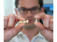 Brücke vs. Implantat