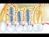 Thumbnail Implantate 4