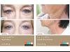 Lifting ohne OP! Neueste Plasma Behandlung mit dem A|C|C|O|R NF+ Cosmetic Corrector