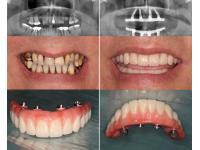 Feste Zähne -all on 4