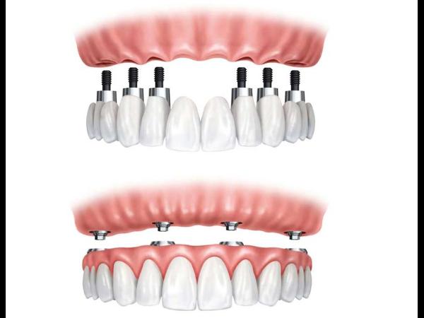 Implantate 2