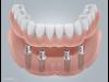 Thumbnail Implantate 1