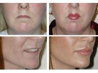 Dr Sebastian Pilz: Lippenvergrösserung  vorher/nachher; Pat.1 lip-roll-op, Pat. 2 Eigenfetttransfer