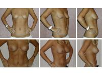 Dr Sebastian Pilz: Liposhaping sixpack und Brustvergrößerung