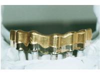 Implantatarbeiten