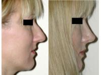 Dr Sebastian Pilz: Nasenkorrektur vorher/nachher