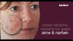 Kur gegen Akne & Narben
