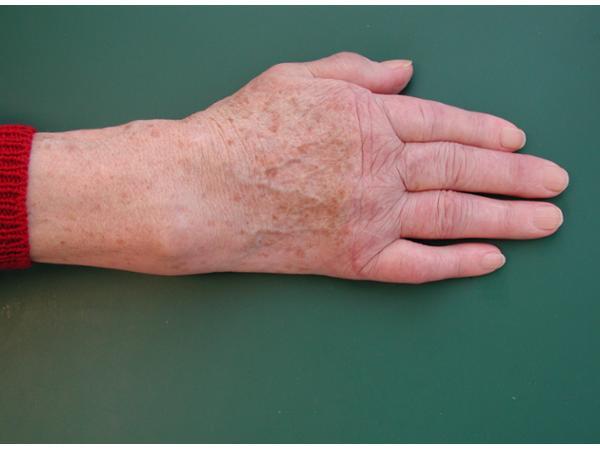 Vorschau - Rheumahand 9 Wochen nach der Operation