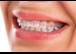 Zahnspangen-Praxis