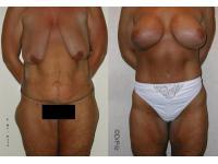 Dr Sebastian Pilz: Total Body Make-over, vorher/nachher