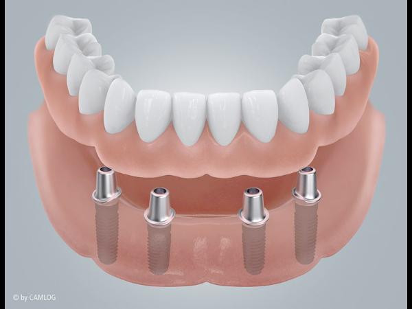 Implantate 1