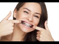 Festsitzende Zahnspange mit Metallbrackets