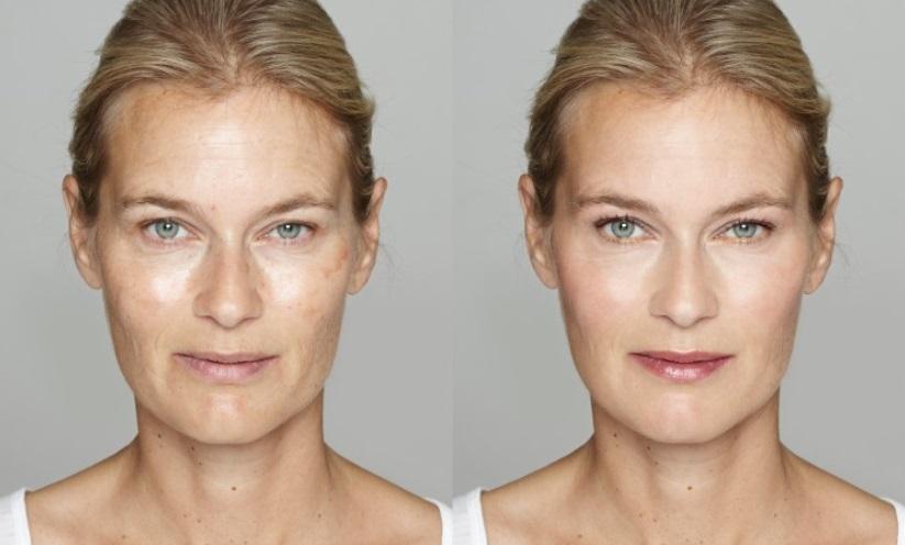Pigmentflecken im Gesicht