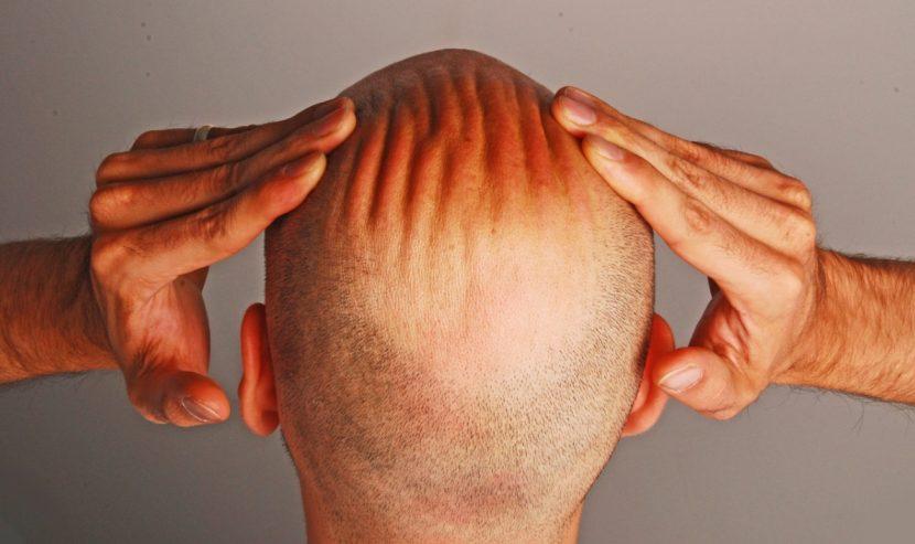 Haartransplantation Wien Was Kostet Es Was Bringt Es Heroldat