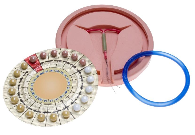 Die Pille, die Hormonspirale und der Vaginalring sind hormonelle Verhütungsmittel. Foto: Adobe Stock, (c) euthymia