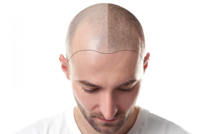 Haartransplantation forum