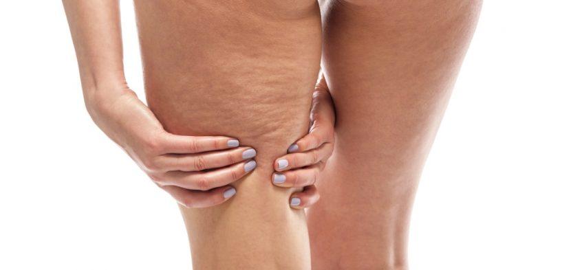 Cellulite loswerden am Oberschenkel: Wie kann ich Orangenhaut bekämpfen?