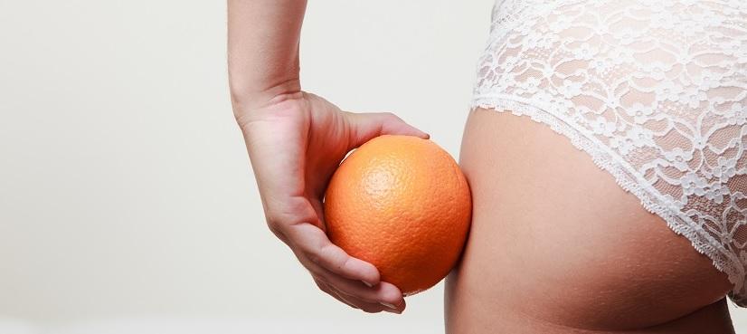 Cellulite loswerden: Was tun gegen Orangenhaut?