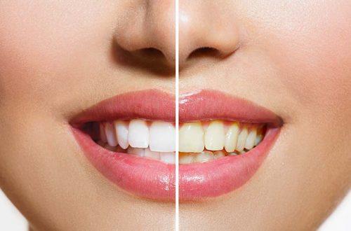 Bleaching Zähne vorher nachher