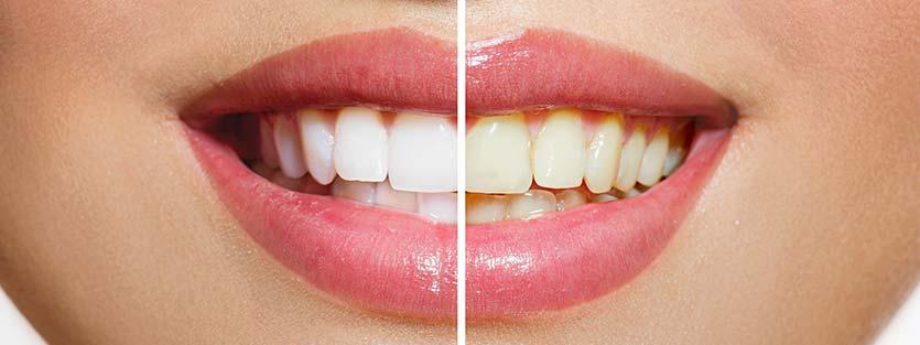 Färbende lebensmittel zähne
