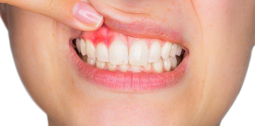 Zahnschmerzen schwangerschaft