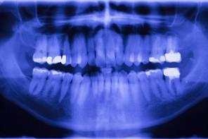 Zahnfleischentzündung: Was tun gegen Parodontose und Parodontitis?