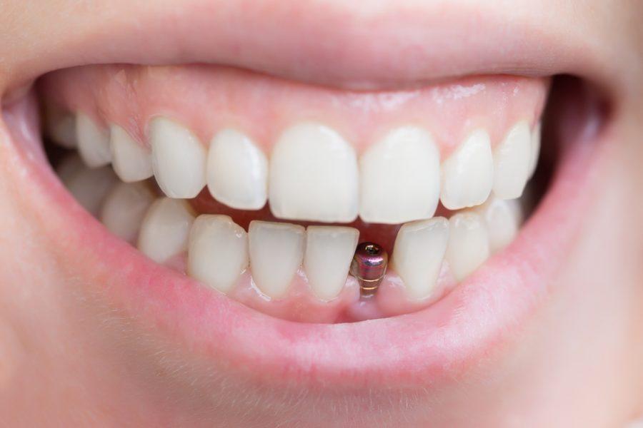 Zahnimplantate: Arten und Kosten
