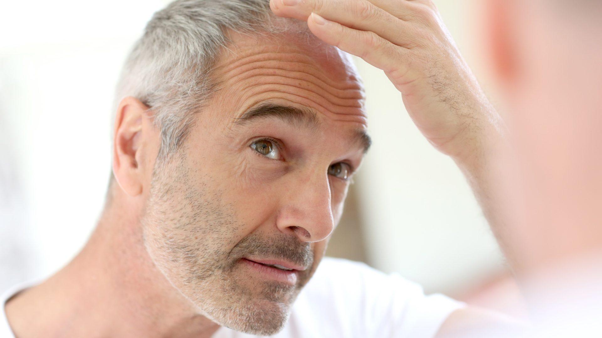 Haartransplantation Wien, Methoden, Haare