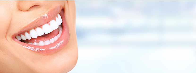 Bezauberndes Lächeln einer jungen Frau, deren Gebiss durch ästhetische Zahnheilkunde verschönert wurde.