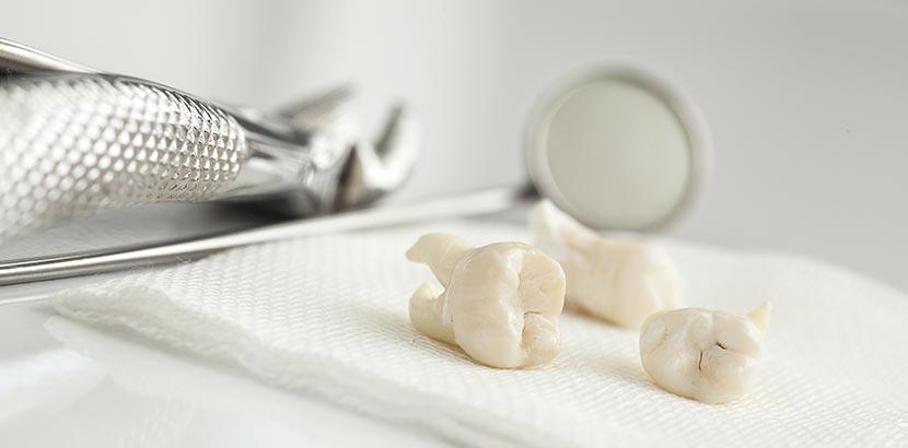 Ein Tablett, auf dem nach einem Eingriff in Vollnarkose mehrere Zähne liegen. Weisheitszähne ziehen.