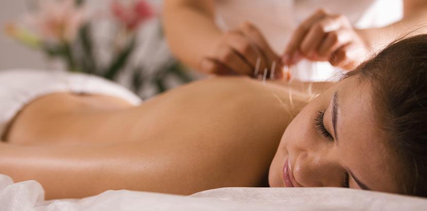 Junge Frau, die Akupunktur gegen Ischiasnerv Schmerzen bekommt.