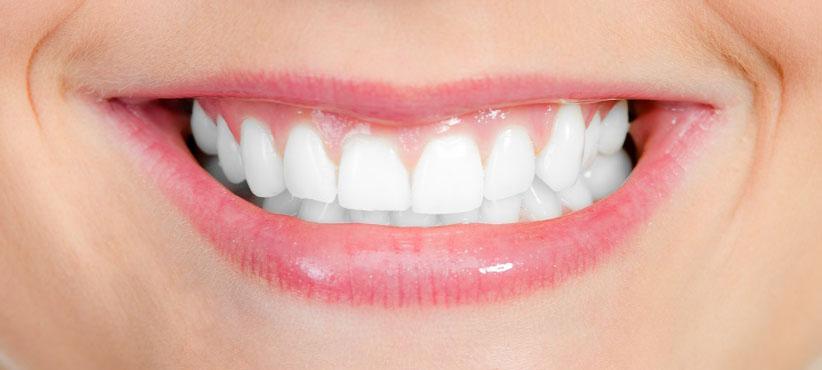 Zahnschmelz Aufbauen Natürlich