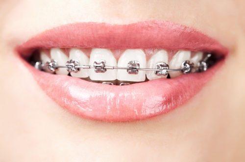 Zahnspangen Brackets