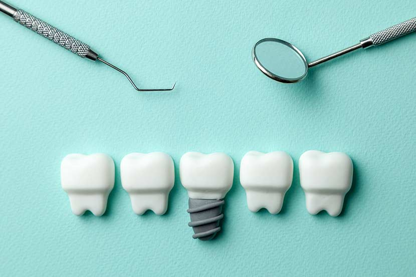 Zahnersatz Krankenkasse