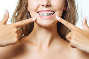 Untere Gesichtshälfte einer hübschen jungen Frau mit Zahnspange Brackets.