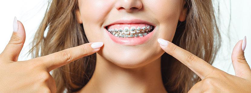 Fotos von krummen Zähnen vor und nach dem Abnehmen