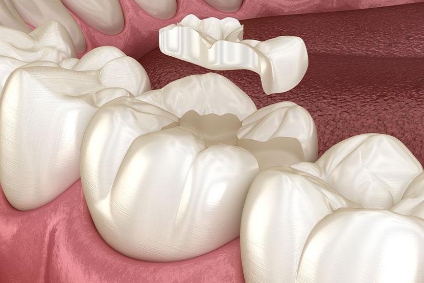 3-D-Modell von Zähnen, in die eine Zahnfüllung eingelassen wird.