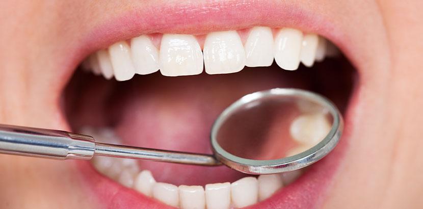 Offener Mund bei der zahnärztlichen Untersuchung, der schöne weiße Zähne offenbar. Zahnfüllungen aus Kunststoff.