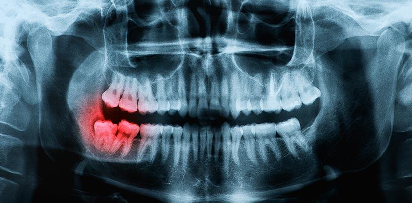 Ein Röntgenbild von einem Weisheitszahn, bei dem eine Operation samt Betäubung notwendig ist.