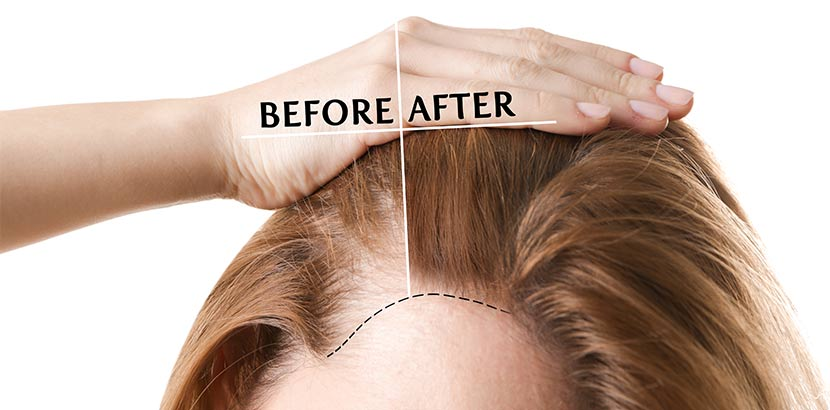 Scheitel einer jungen Frau nach einer Haartransplantation gegen Haarausfall.