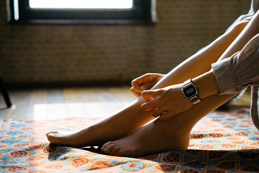 Besenreiser entfernen: Die Beine einer Frau