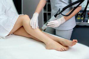 Haarentfernung mit dem Laser für dauerhaft glatte Haut