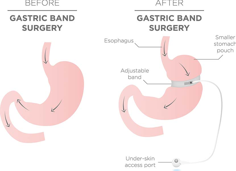 Schematische Darstellung einer Magenband Operation
