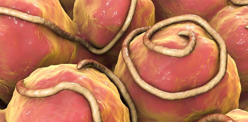 Mikroskopische Darstellung von Madenwürmern im menschlichen Darm.