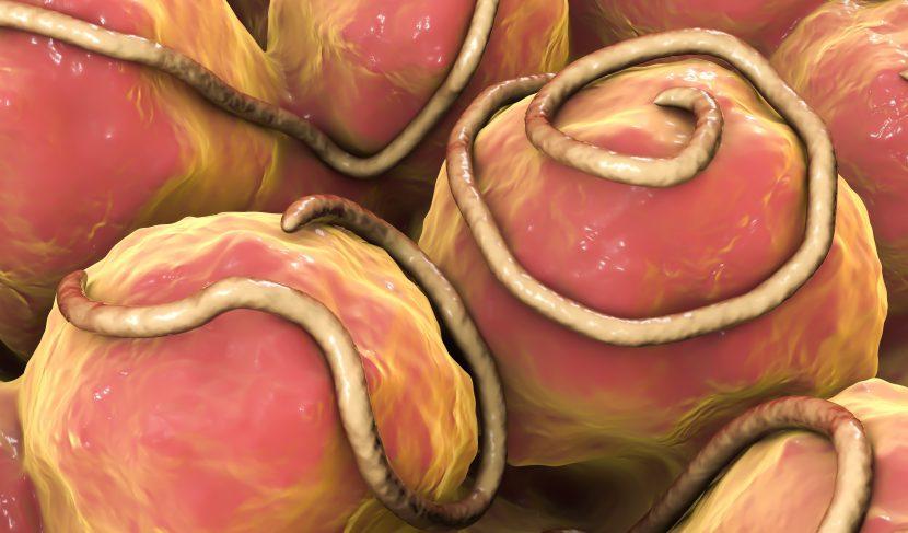 Madenwürmer Eier Menschen